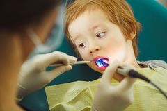 Application of ultraviolet fillings child. Patient little boy at dentist. royalty free stock images