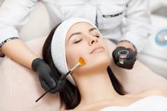 Applicazione della maschera dell'anti-acne della sbucciatura sul fronte immagini stock libere da diritti