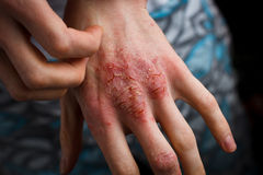 Applying an emollient to dry flaky skin as in the treatment of psoriasis, eczema and other dry skin conditions. Psoriasis, eczema and other dry skin conditions Stock Images