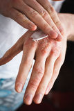 Applying an emollient to dry flaky skin as in the treatment of psoriasis, eczema and other dry skin conditions Stock Photo