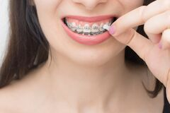 Free Applying Orthodoentic Wax On The Dental Braces. Brackets On The Teeth After Whitening. Self-ligating Brackets With Metal Ties And Stock Photo - 174597440