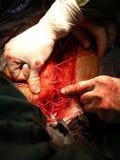 Après chirurgie de coeur Photo libre de droits