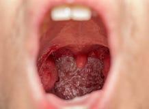 Apra la vista della bocca delle tonsille Fotografia Stock Libera da Diritti