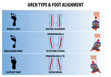Arch Type and Foot Alignment. Illustration of Arch Type and Foot Alignment Stock Photography