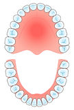 Arco dentale Fotografia Stock