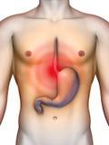 Ardor de estómago Foto de archivo