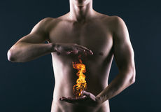 Ardor de estómago. Imagen de archivo