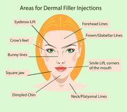 Areas for rejuvenation cosmetological injections Royalty Free Stock Photo