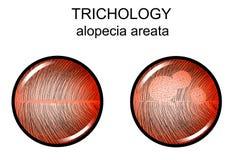 Areata da calvície Trichology ilustração stock