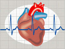 Aritmia cardiaca Fotografia Stock Libera da Diritti