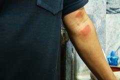 Arm allergy rash Stock Images