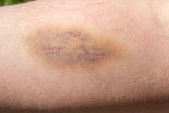 Arm with bruise. Man arm with the bruise Stock Image