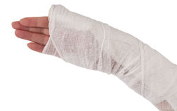 Arm in a cast. On white background Royalty Free Stock Image