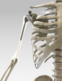 Arm 3D und Schulter prothesis Illustration stockbild