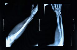 Arm fracture seen on x-ray. X-ray image show fracture of the radius bone stock photography