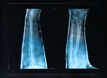 Arm fracture seen on X -ray stock photography