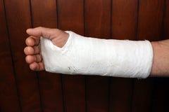 Arm i murbruk Royaltyfri Foto