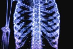 Arm- och kroppröntgenstrålediagram Royaltyfri Fotografi