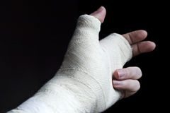 Arm In Plaster Stock Images