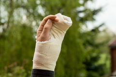 Arm in plaster Royalty Free Stock Images