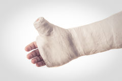 Arm plaster / fiberglass cast with the thumb extended. Close up of a white arm plaster / fiberglass cast with the thumb extended in a thumbs-up shape, isolated stock images