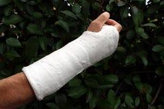 Arm in plaster Stock Photos