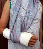 Arm in plaster Stock Image