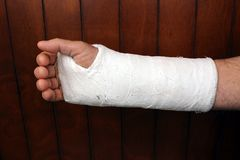 Arm in plaster Royalty Free Stock Photo
