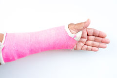 Arm splint. Be in plaster cast royalty free stock photos