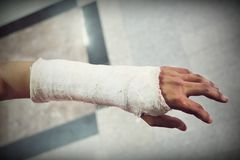 Arm splint, be in plaster cast. Close up of arm splint, be in plaster cast royalty free stock photo