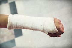Arm splint, be in plaster cast. Close up of arm splint, be in plaster cast stock image