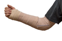 Arm splint. An arm splint from wrist to elbow royalty free stock images