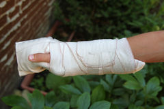 Arm wrapped up in a bandage Stock Photography