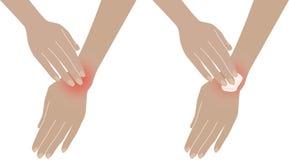 Armache Ból w ręce, nadgarstek Obrazy Stock