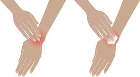 Armache Douleur dans la main, poignet Images stock