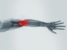 Armbågen för anatomimodellvisningen smärtar Royaltyfria Bilder