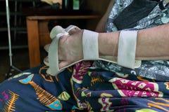 Armen spjälkar för behandling royaltyfria foton