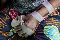 Armen spjälkar för behandling arkivfoton