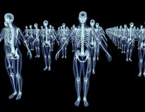 Army of xray skeletons isolated on black Stock Photo