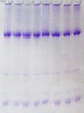 ARN et électrophorèse Images libres de droits