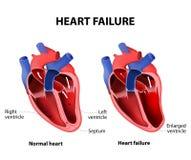 Arrêt du coeur illustration stock