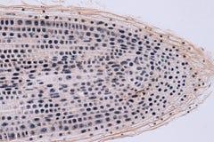 Arraigue la extremidad de la célula de la cebolla y de la mitosis en la extremidad de la raíz Foto de archivo
