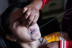 Arranque e remoção dolorosos dos cabelos do bordo superior de uma senhora com rosqueamento procedimento cosmético do epilation na fotografia de stock