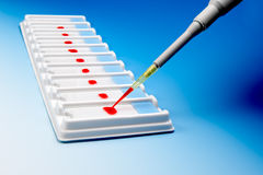 Blood microscopic samples Royalty Free Stock Photography