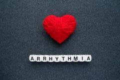 Arritmia del corazón, dysrhythmia cardiaco o latido del corazón irregular AR foto de archivo libre de regalías