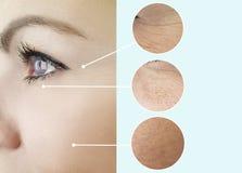Arrugas adultas del ojo de la mujer que levantan al cosmetólogo maduro de la regeneración de la piel antes y después de procedimi foto de archivo libre de regalías