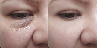 Arrugas cauc?sicas de la cara de la muchacha despu?s del retiro fotografía de archivo