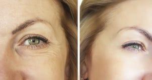 Arrugas de la cara antes y después Foto de archivo