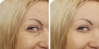 Arrugas de la cara de la mujer antes y después fotografía de archivo libre de regalías