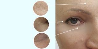 Arrugas de la cara de la mujer antes y después del tratamiento maduro de la corrección del procedimiento de la dermatología del c imagenes de archivo